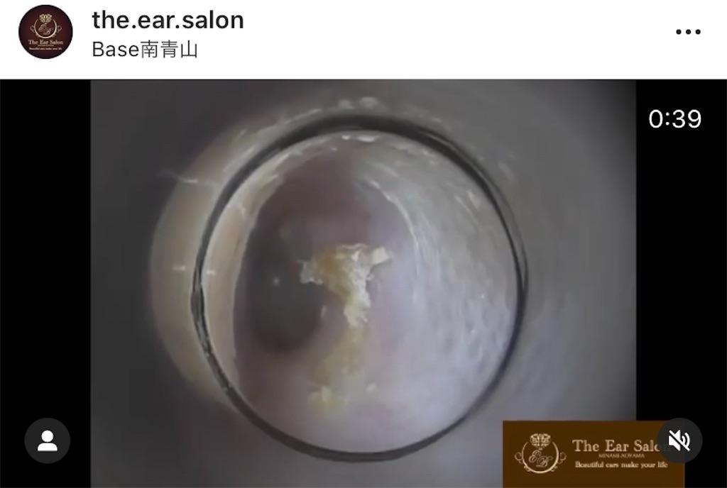 f:id:earwax-cleaning-mimisoji:20200909122003j:image