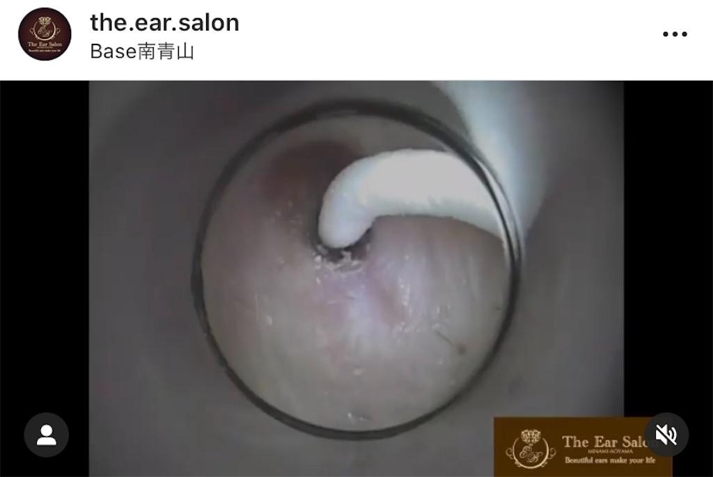 f:id:earwax-cleaning-mimisoji:20200928111758j:image