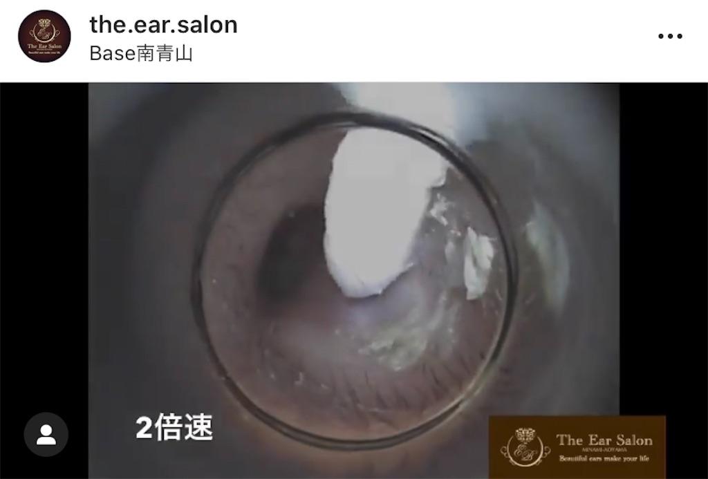 f:id:earwax-cleaning-mimisoji:20201003093913j:image
