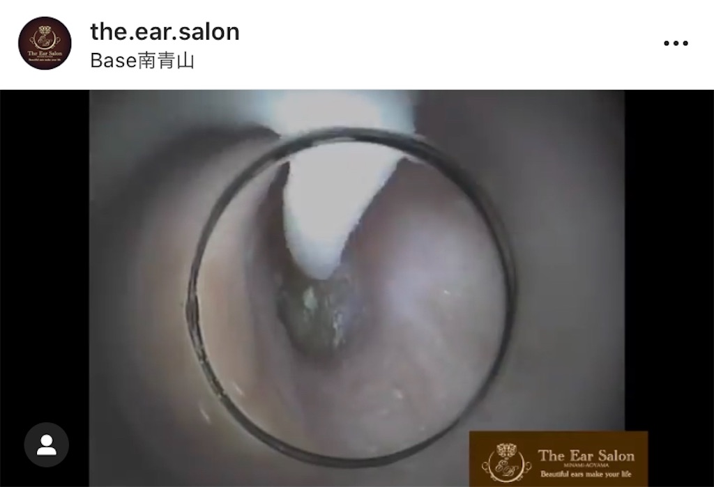 f:id:earwax-cleaning-mimisoji:20201004092754j:image