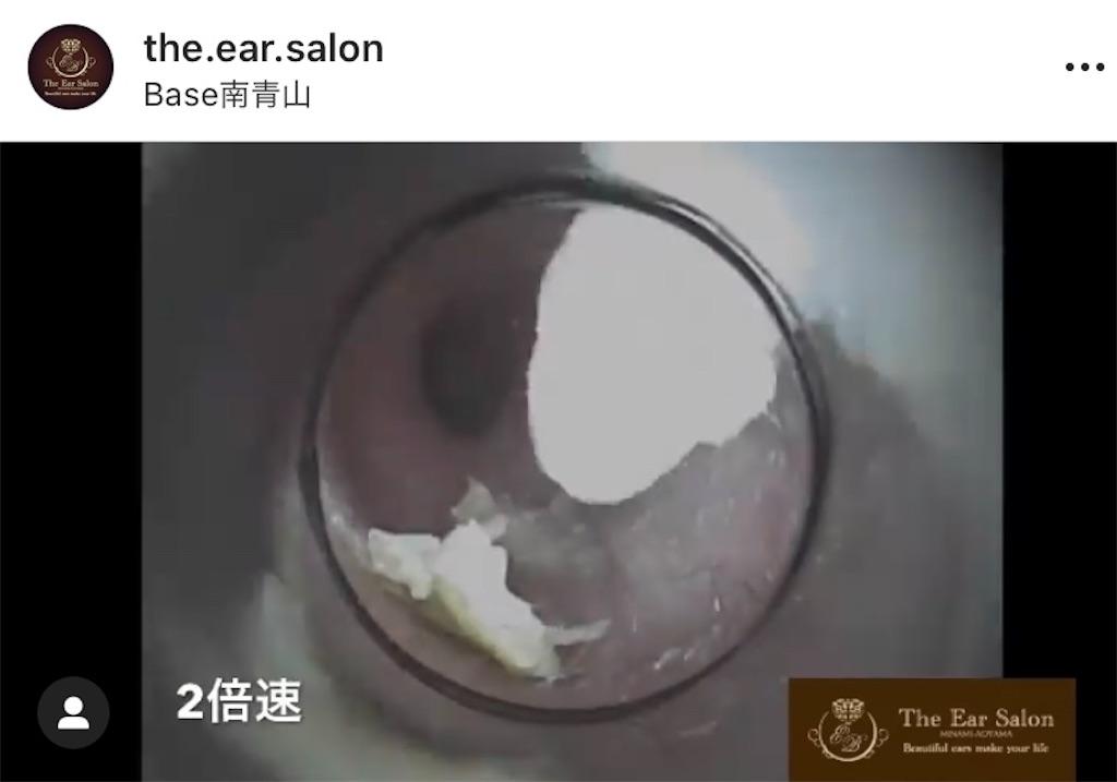 f:id:earwax-cleaning-mimisoji:20201005112435j:image