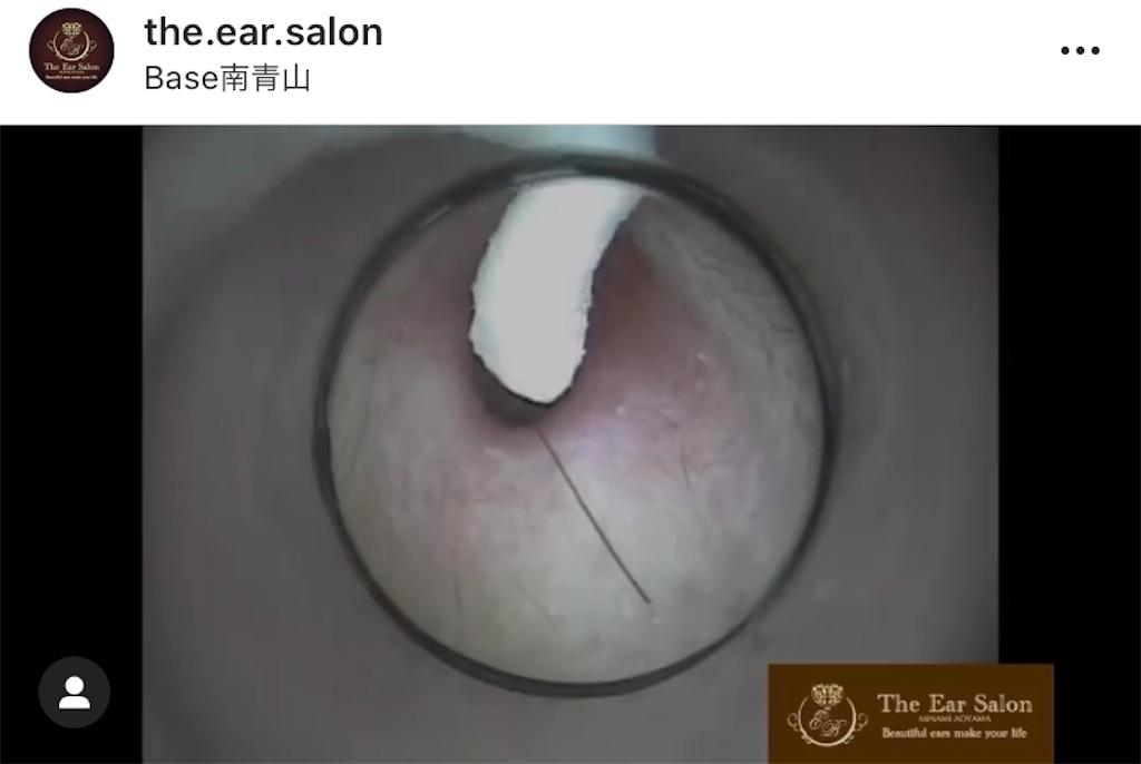 f:id:earwax-cleaning-mimisoji:20201008125127j:image