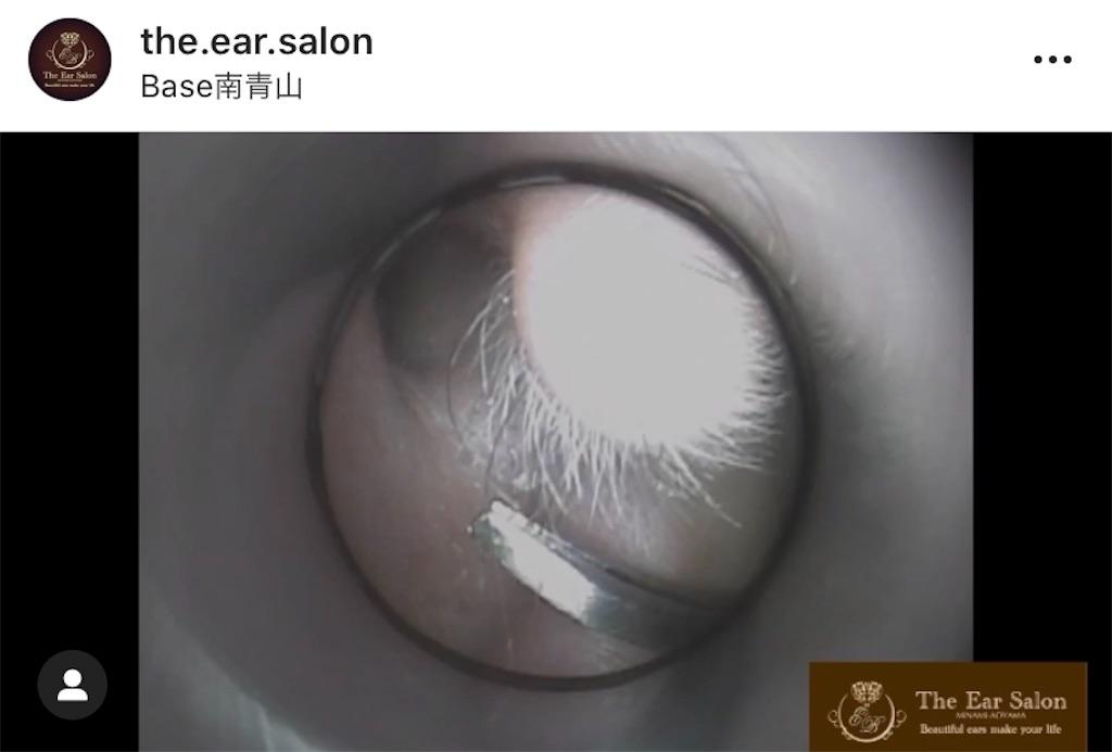 f:id:earwax-cleaning-mimisoji:20201009112232j:image