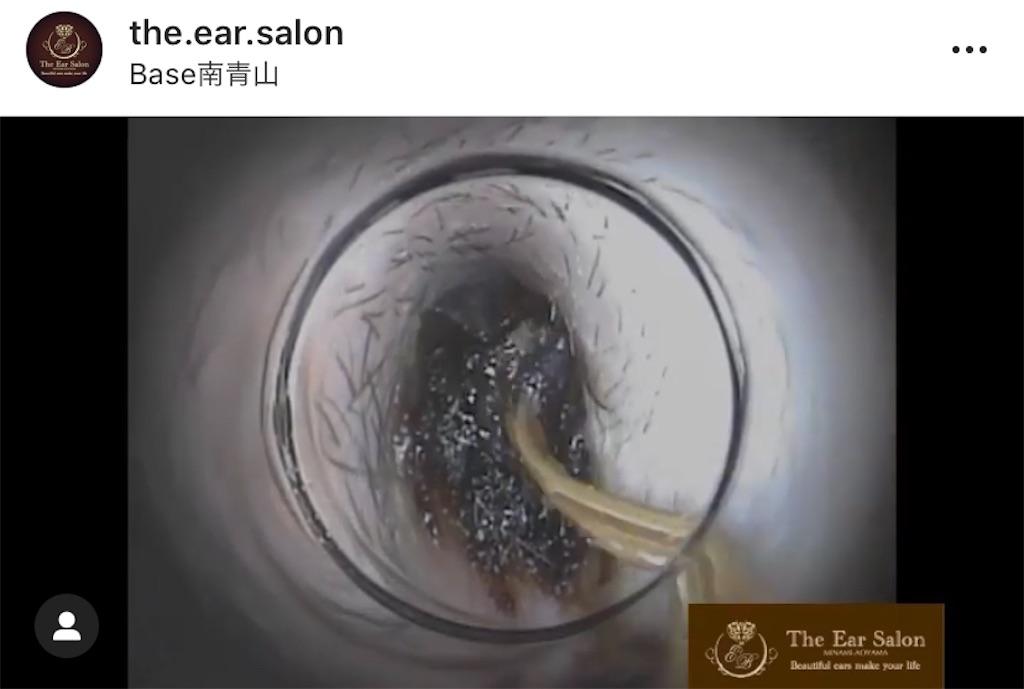 f:id:earwax-cleaning-mimisoji:20201015162433j:image