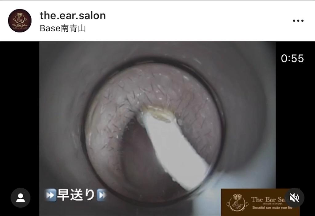 f:id:earwax-cleaning-mimisoji:20201026102634j:image