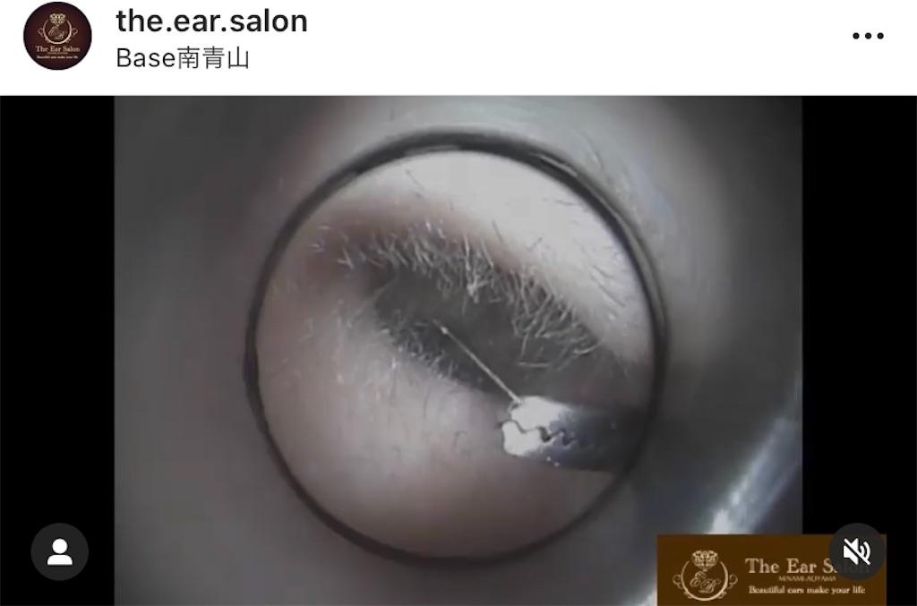 f:id:earwax-cleaning-mimisoji:20201028103641j:image