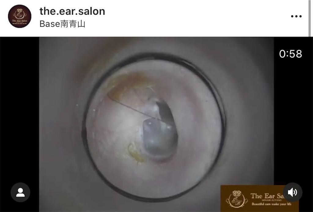 f:id:earwax-cleaning-mimisoji:20201031223149j:image