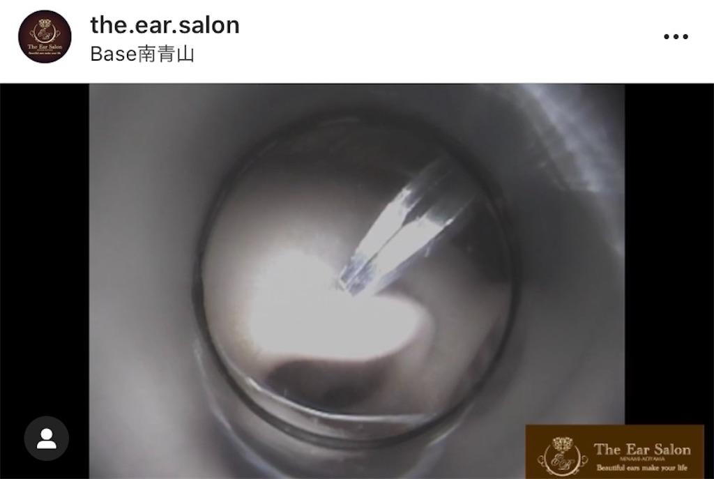 f:id:earwax-cleaning-mimisoji:20201102173822j:image