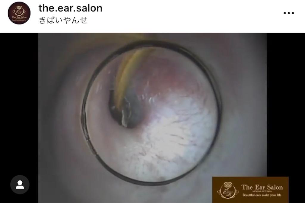 f:id:earwax-cleaning-mimisoji:20201106111407j:image