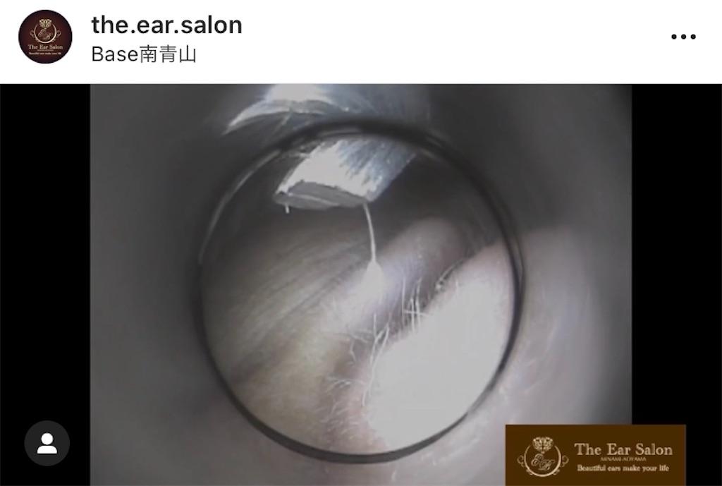 f:id:earwax-cleaning-mimisoji:20201107100052j:image