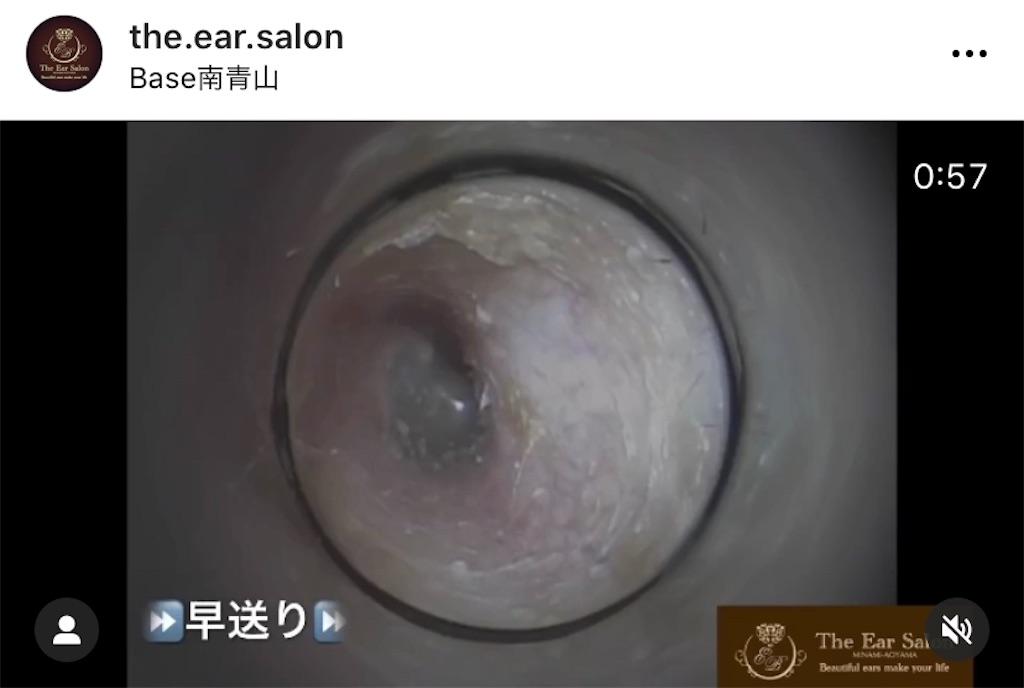 f:id:earwax-cleaning-mimisoji:20201114212035j:image