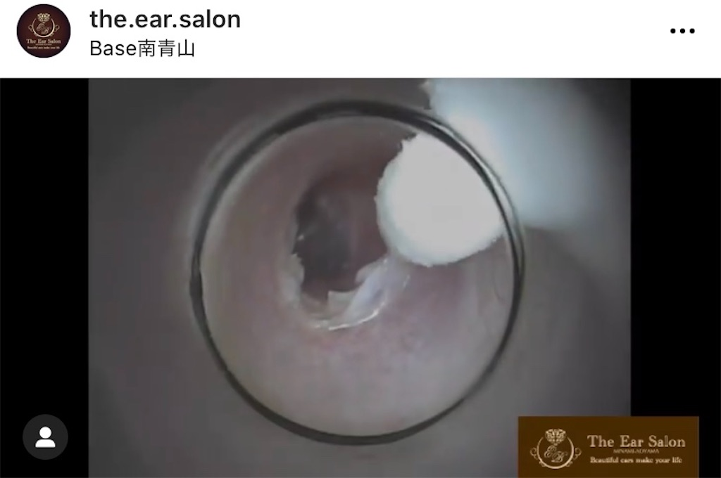 f:id:earwax-cleaning-mimisoji:20201118161648j:image