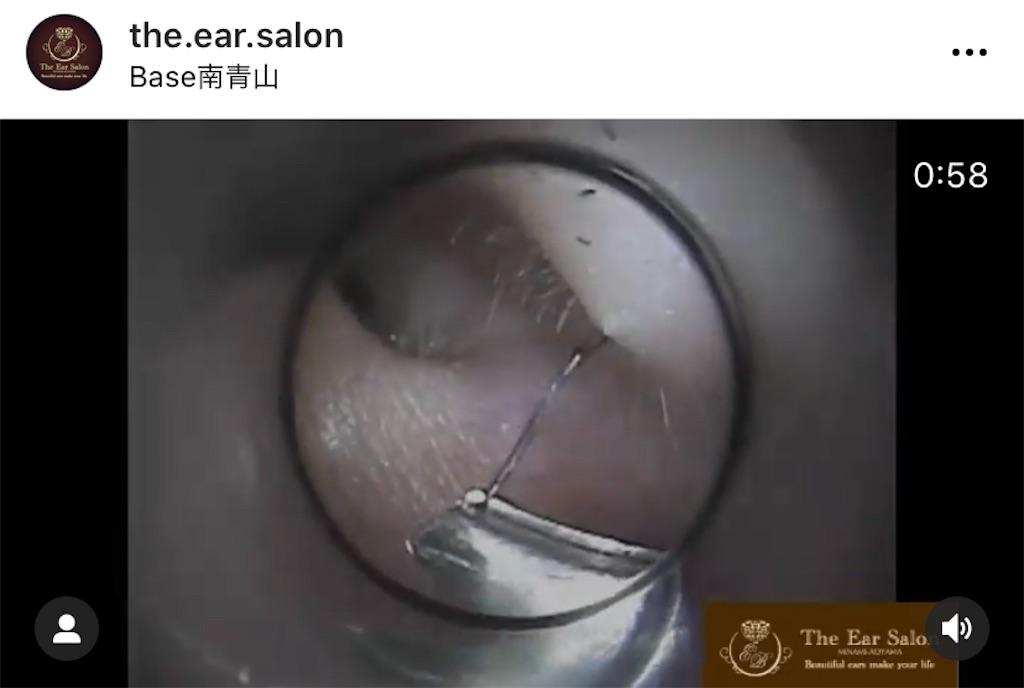 f:id:earwax-cleaning-mimisoji:20201120230926j:image