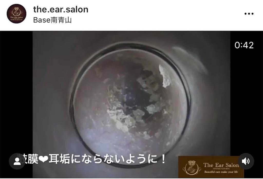 f:id:earwax-cleaning-mimisoji:20201127231943j:image