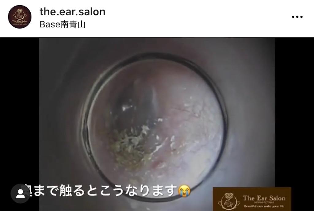 f:id:earwax-cleaning-mimisoji:20201127232043j:image