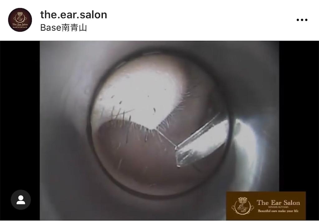 f:id:earwax-cleaning-mimisoji:20201128205427j:image