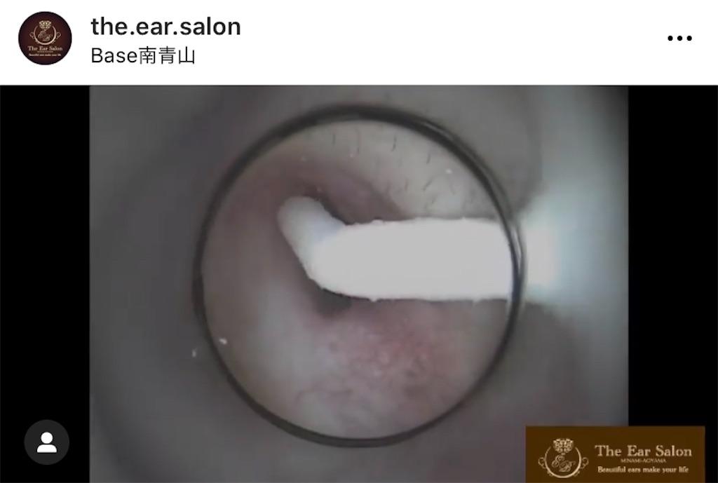 f:id:earwax-cleaning-mimisoji:20201129114726j:image