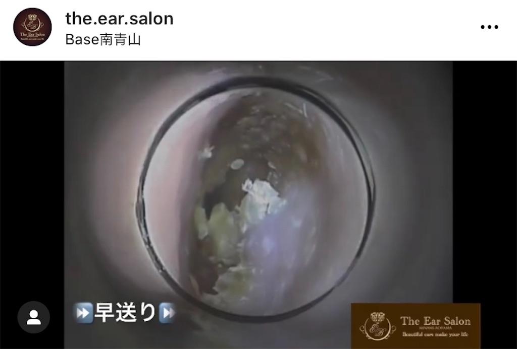 f:id:earwax-cleaning-mimisoji:20201203101548j:image