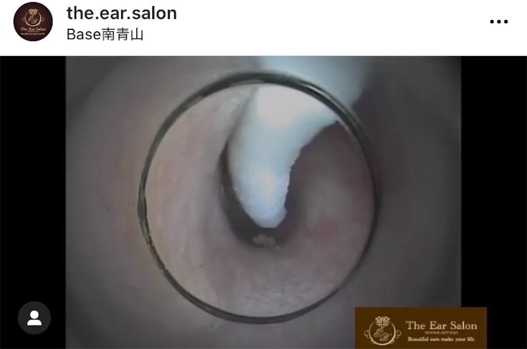 f:id:earwax-cleaning-mimisoji:20201203101938j:image