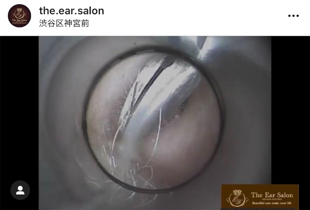 f:id:earwax-cleaning-mimisoji:20201207113236j:image