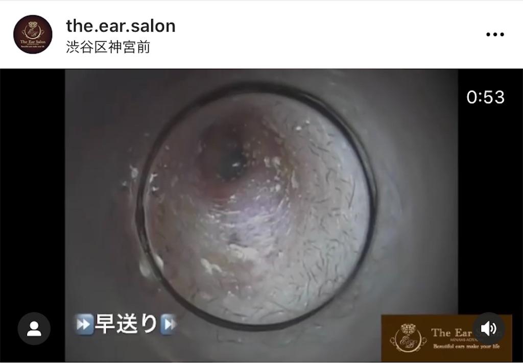 f:id:earwax-cleaning-mimisoji:20201210230740j:image
