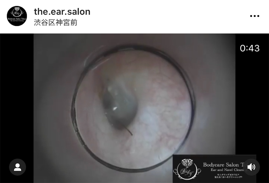 f:id:earwax-cleaning-mimisoji:20201222215151j:image