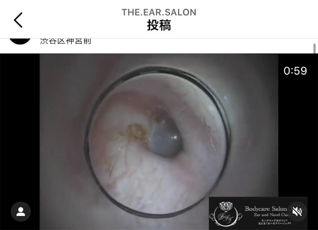 f:id:earwax-cleaning-mimisoji:20201224173316j:image