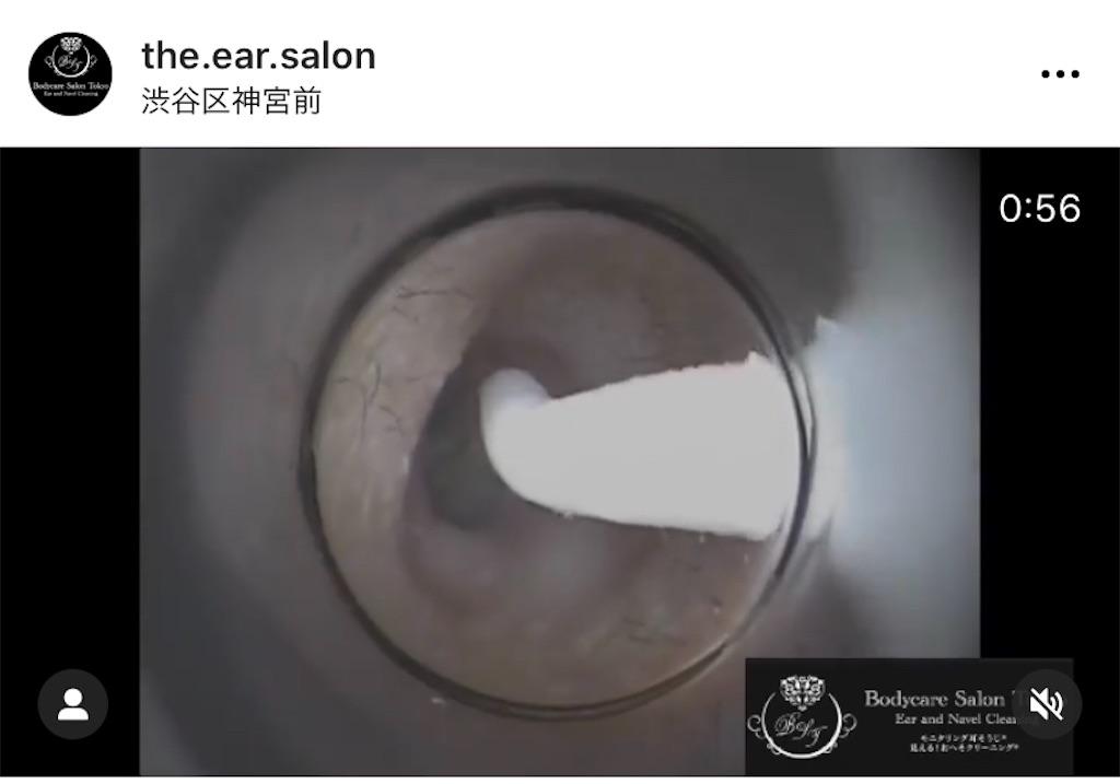 f:id:earwax-cleaning-mimisoji:20201226095049j:image