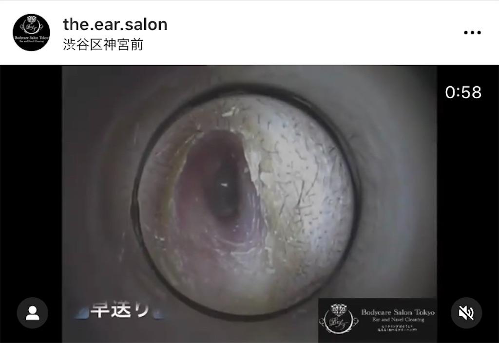 f:id:earwax-cleaning-mimisoji:20201230213635j:image