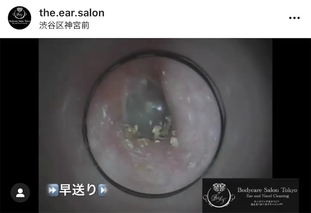 f:id:earwax-cleaning-mimisoji:20210104110446j:image