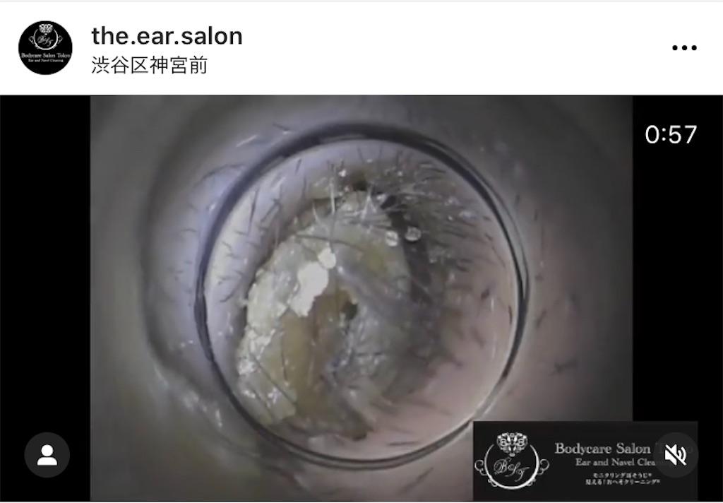 f:id:earwax-cleaning-mimisoji:20210105100135j:image
