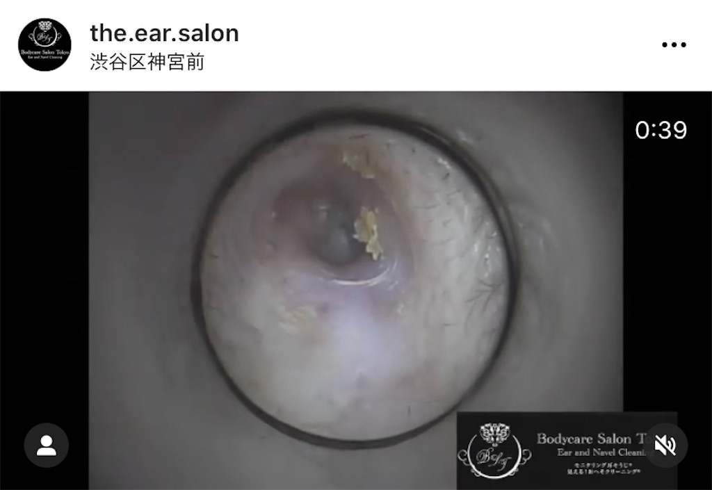 f:id:earwax-cleaning-mimisoji:20210107103205j:image