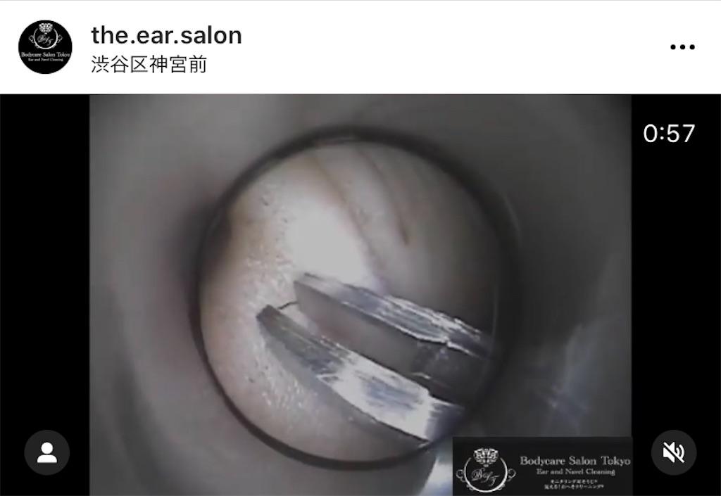f:id:earwax-cleaning-mimisoji:20210118010112j:image
