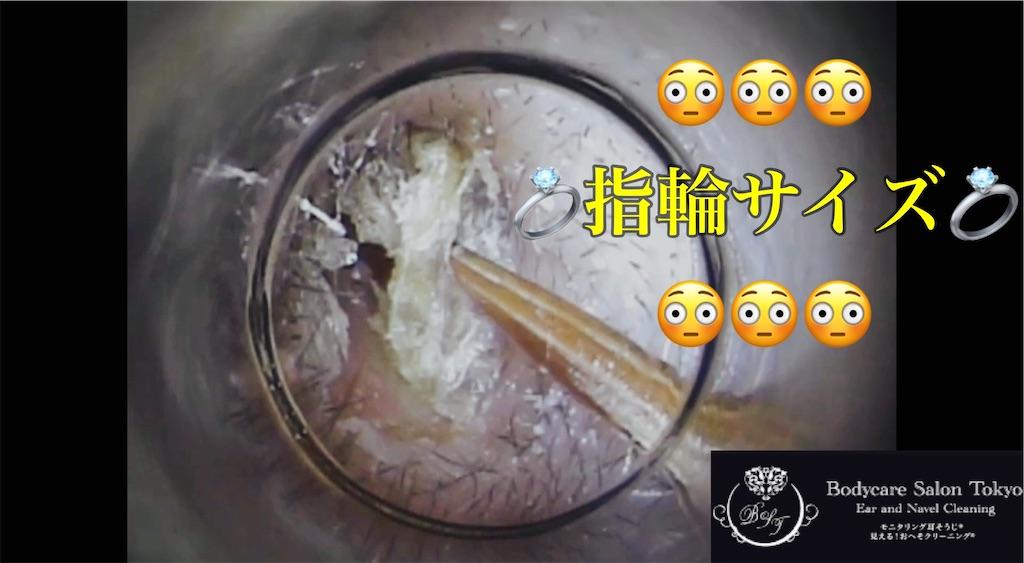 f:id:earwax-cleaning-mimisoji:20210204144016j:image