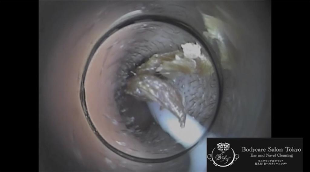 f:id:earwax-cleaning-mimisoji:20210210235545j:image