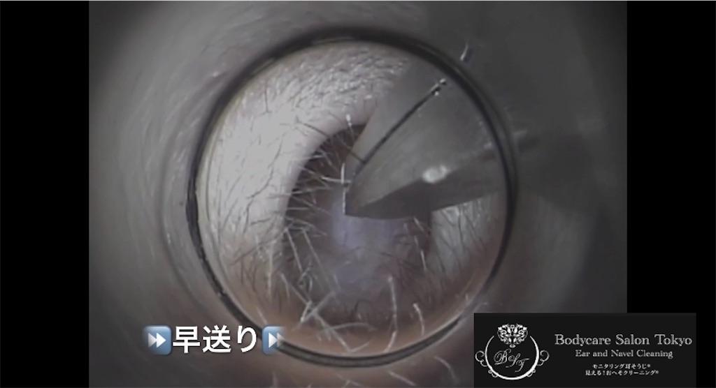 f:id:earwax-cleaning-mimisoji:20210222160336j:image