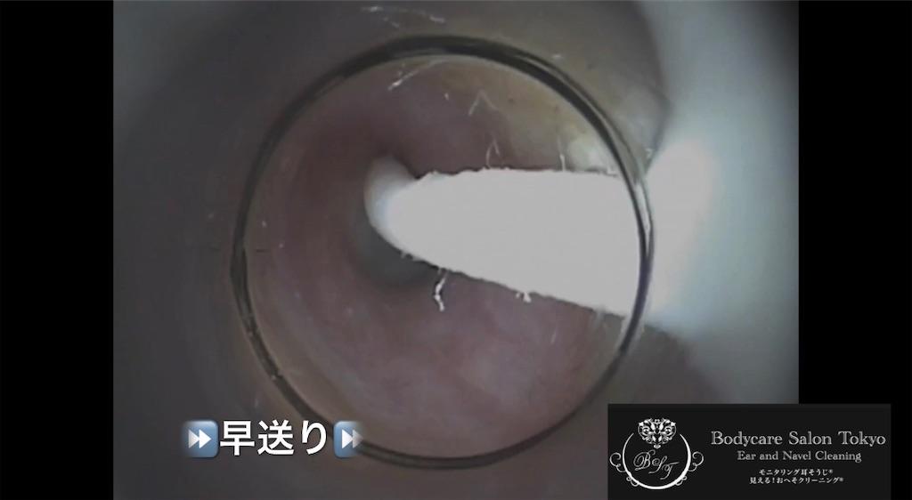 f:id:earwax-cleaning-mimisoji:20210511140737j:image