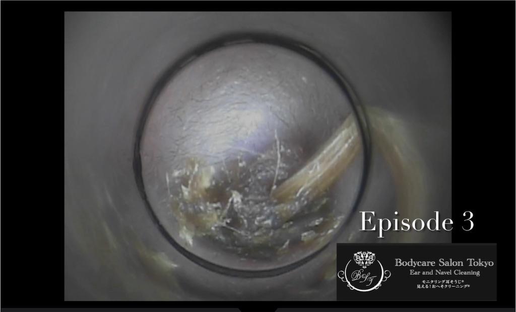 f:id:earwax-cleaning-mimisoji:20210608182950j:image