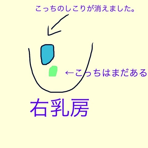 f:id:egao700:20180224000605j:image