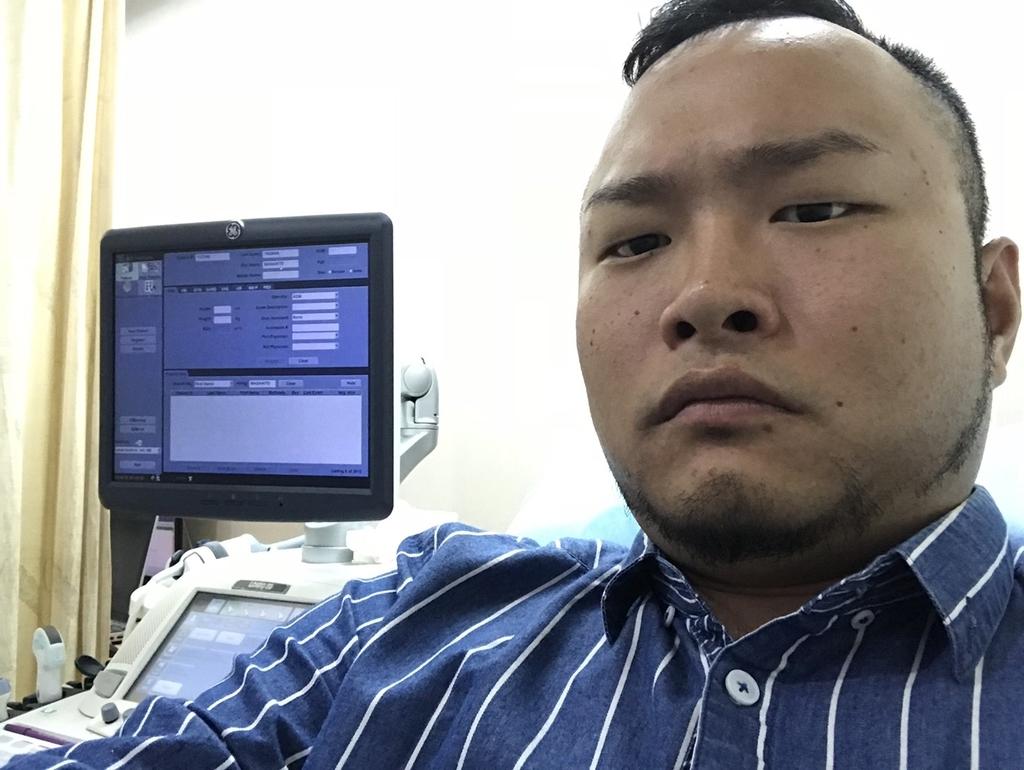 f:id:eggyazawa:20181026152520j:plain