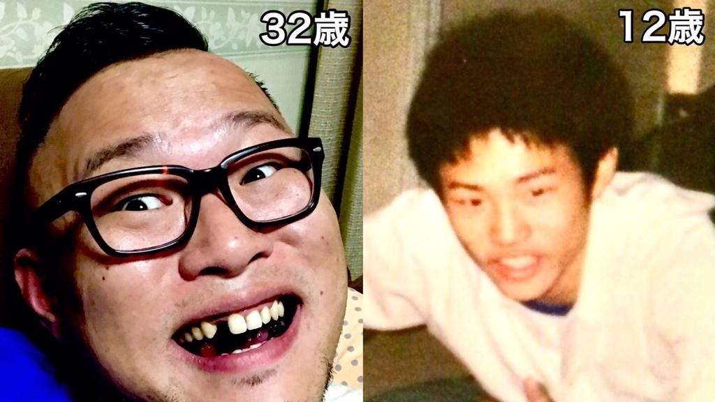f:id:eggyazawa:20181109215047j:plain