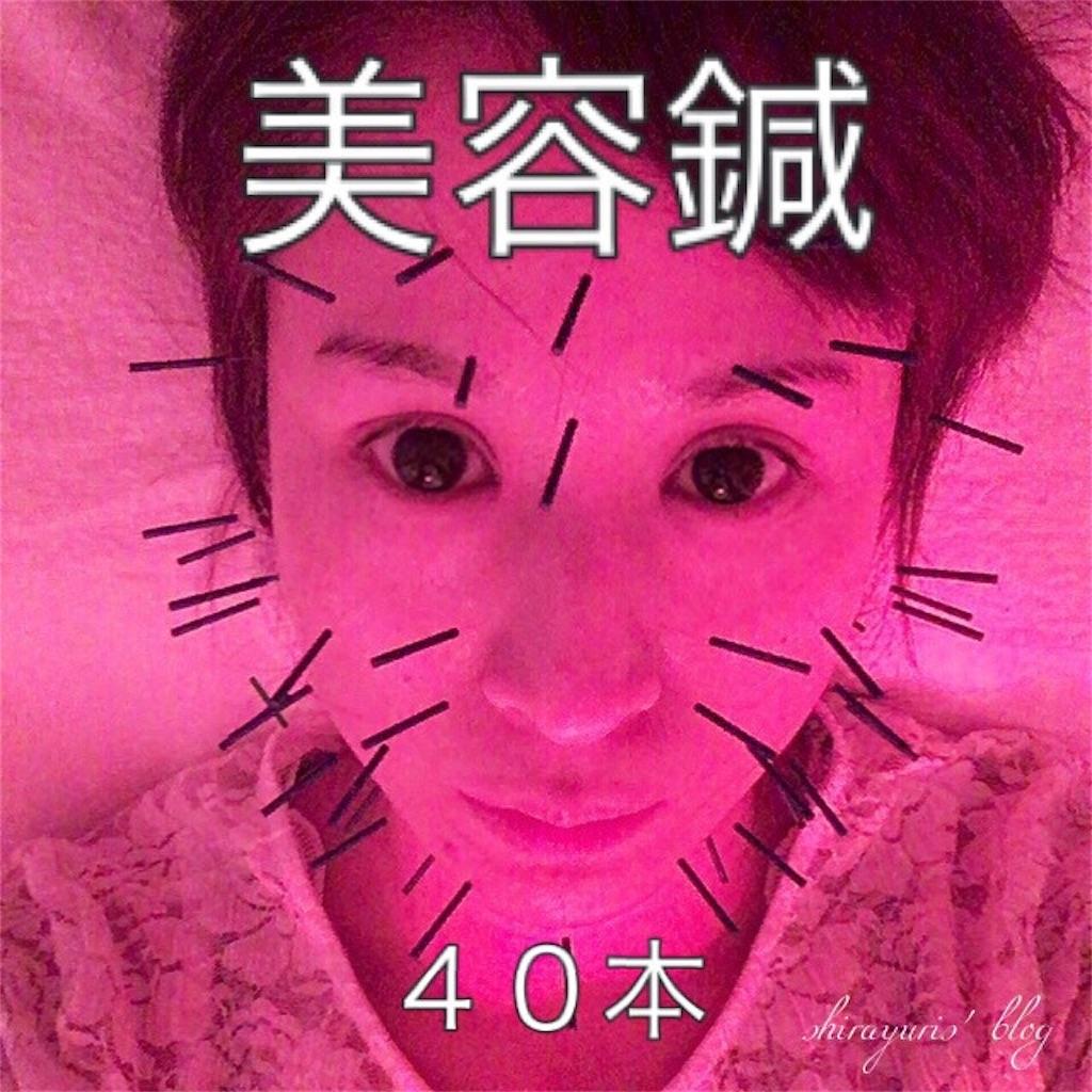 f:id:emiliaikemu4649:20200401034557j:image
