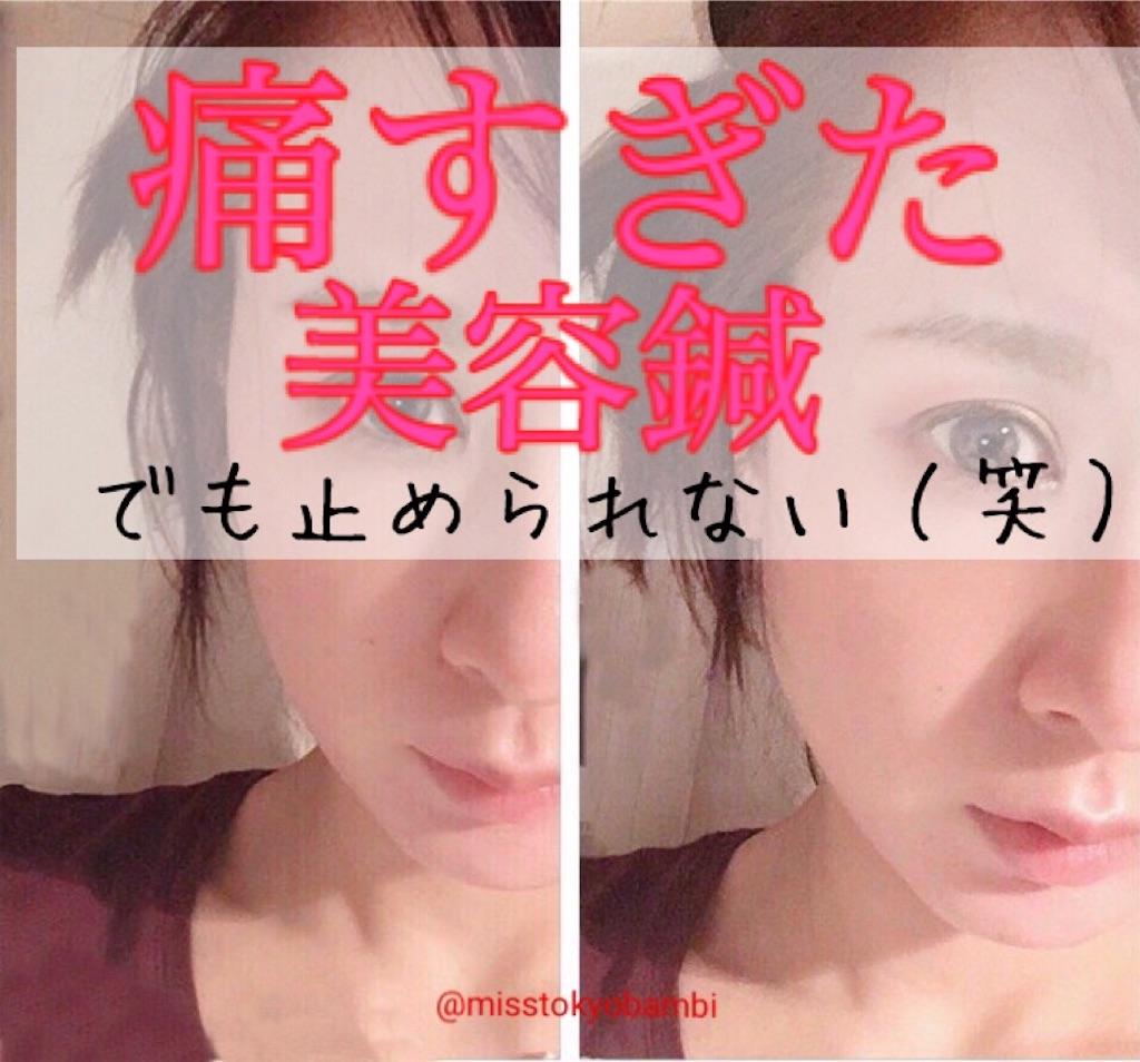 f:id:emiliaikemu4649:20200504030608j:image