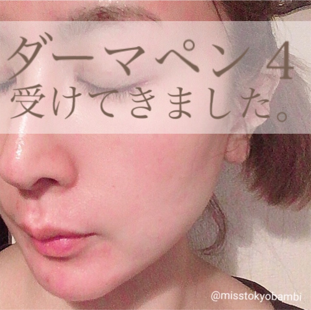 f:id:emiliaikemu4649:20210504032658j:plain