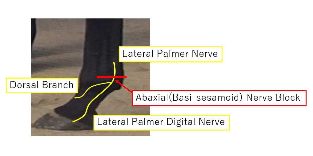 abaxial nerve block