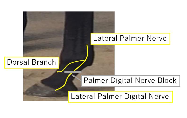 Palmer digital nerve block