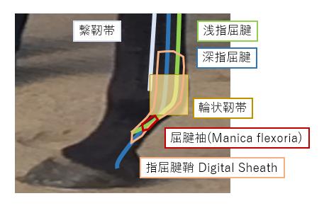digital sheath