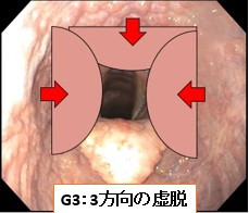 咽頭虚脱G3