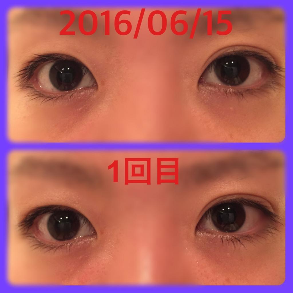 f:id:everydaycharmingkeiko:20161129233012j:plain