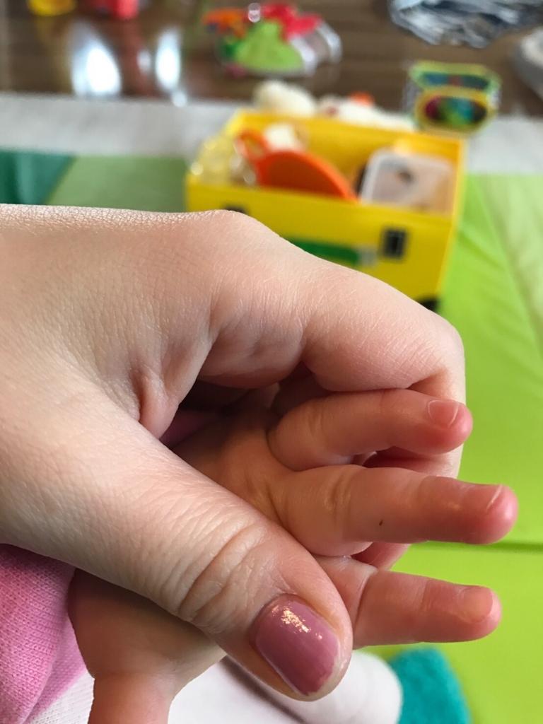 トゲが指に刺さっている